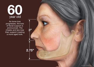 Bone-loss-60-year-old